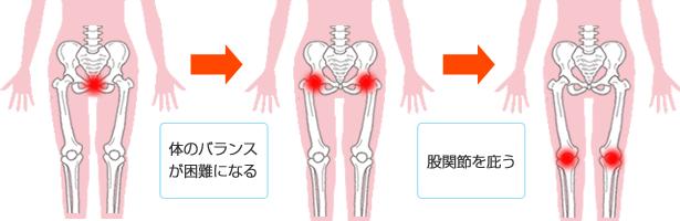 尾骨骨折から膝関節