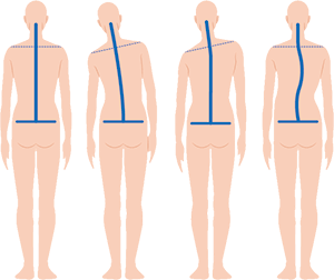 背骨モデル