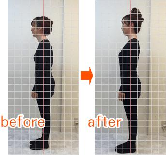 猫背before→after画像